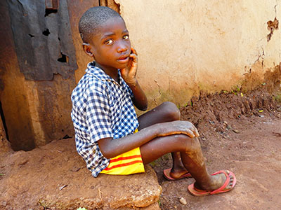 You can help children like Timothy.